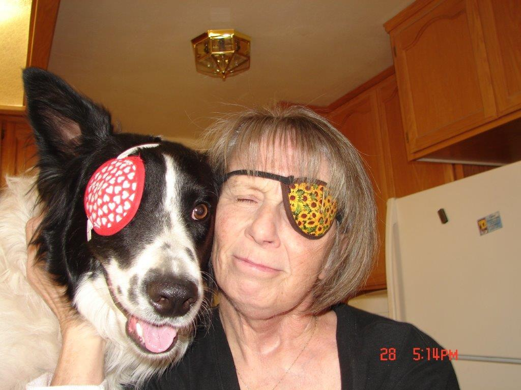 One-Eyed Woman Finds Companionship with One-Eyed Dog