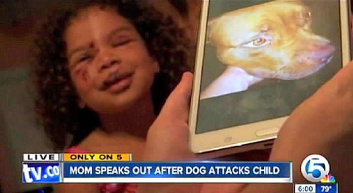 Dog Attacks Kid And Cat Saves Him