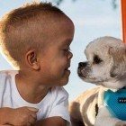 Standing Tall: Dog Helps 5-Year-Old with Dwarfism